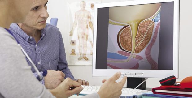 Onemocnění prostaty