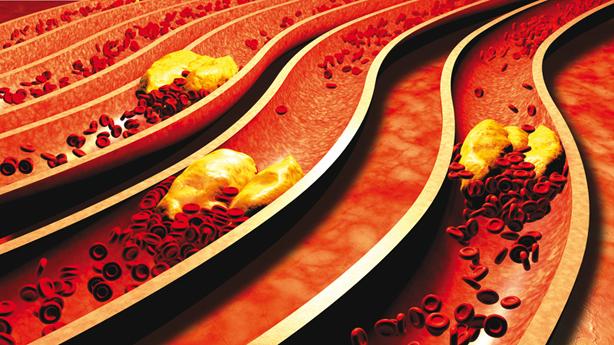 Cholesterol – mocný strašák našich životů