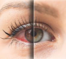 Potřebujete oční kapky?
