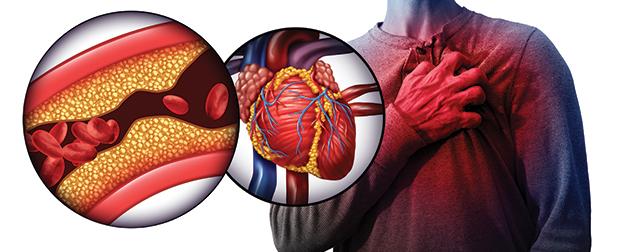 Kardiovaskulární onemocnění – epidemie moderní doby