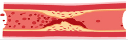 Cholesterol – tichý zabiják